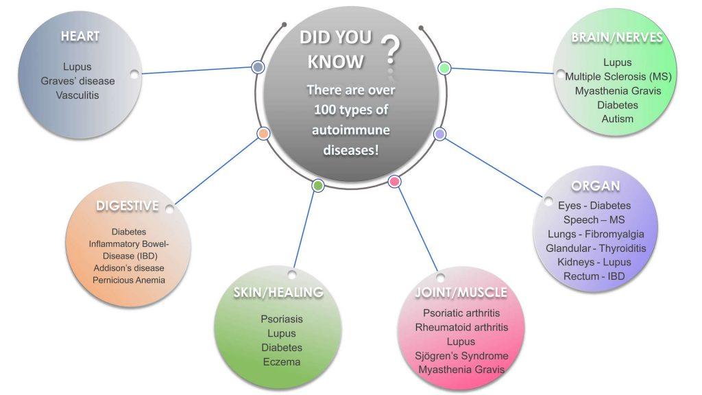 Common autoimmune diseases