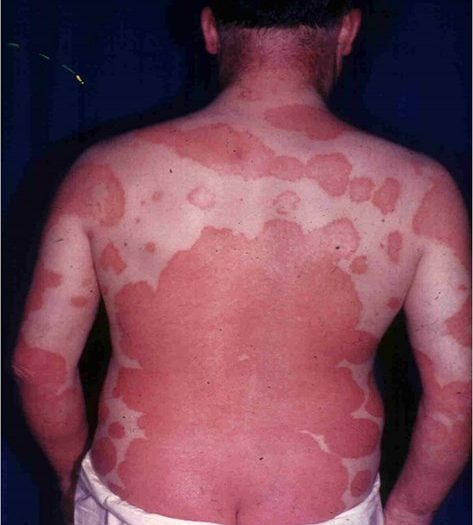 What is Erythrodermic Psoriasis? | TreatPsoriasis.com