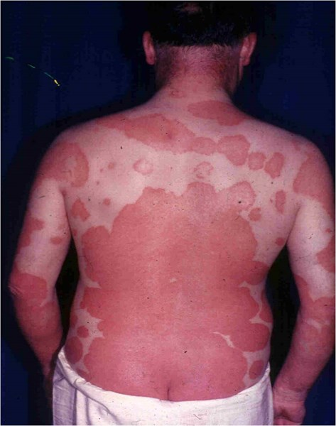What is Erythrodermic Psoriasis?   TreatPsoriasis.com